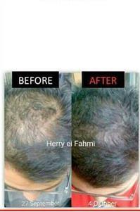 aumento de cabelo